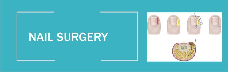 nailsurgery